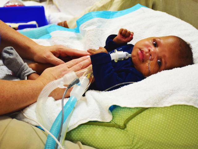 post acute neonatal care